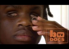 DOCS: The Boy Who Can See Without Eyes